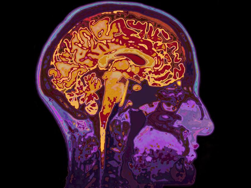 Ein Gehirn wie jedes andere